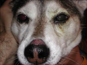 protesi impiantata nell'occhio sinistro